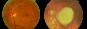 Image on left is a healthy retina. Image on right is a scarred retina from wet AMD